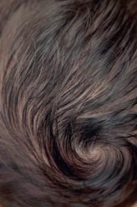 косопадът може да се победи с трансплантация на коса