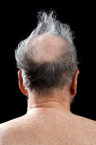 адекватно лечение на косопад при мъжете